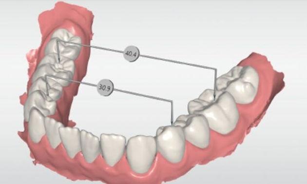 Cerec design Ortho σχεδίαση ορθοδοντική οδοντιατρική σε μια επίσκεψη Primescan οδοντιατρικος σαρωτης οδοντιατρικό σκανερ scanner Ελλάδα