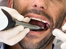 Omnicam οδοντιατρικος σαρωτης οδοντιατρικό σκανερ scanner Ελλάδα