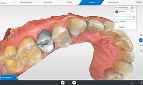 Cerec design σχεδιασμός οδοντιατρικος σαρωτης οδοντιατρικό σκανερ scanner Ελλάδα