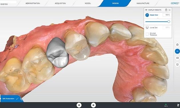 Cerec design σχεδίαση οδοντιατρική σε μια επίσκεψη Primescan οδοντιατρικος σαρωτης οδοντιατρικό σκανερ scanner Ελλάδα