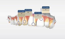 Cerec design χρωματοληψία οδοντιατρικος σαρωτης οδοντιατρικό σκανερ scanner Ελλάδα
