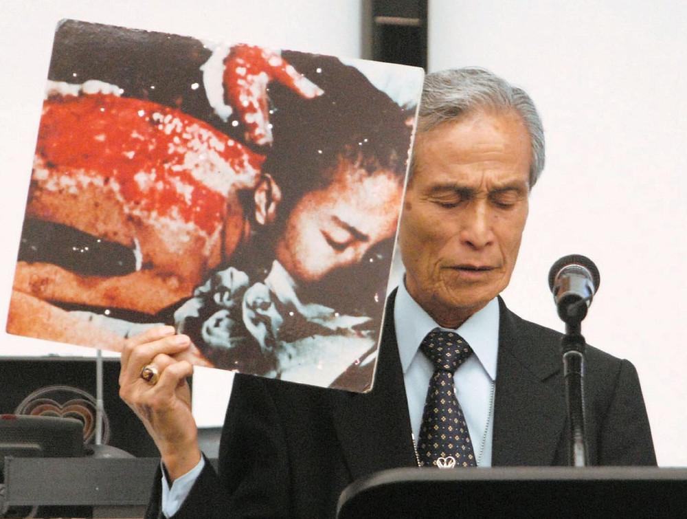 Image result for sumiteru taniguchi japanese nuclear victim