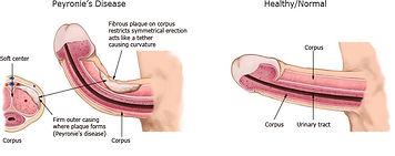 urologo en guadalajara, prostata, vph, inapam