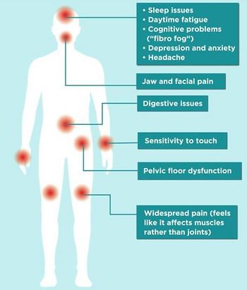 Conditions-fibromyalgia.PNG