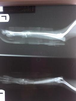 fractured leg. repaired.jpg