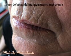 voor behandeling rokers lijntjes_edited.