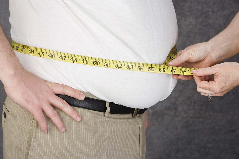 Obesity-body-fat-accumulation-conditions