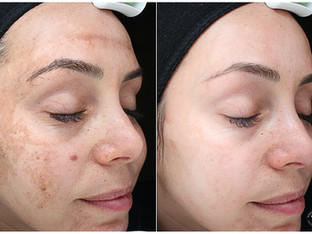 7 day skin Transformation#VIPEEL