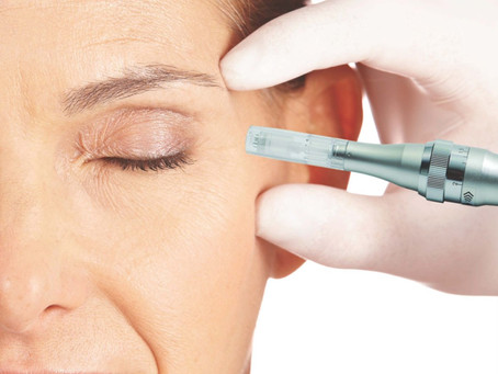 Regenerative Procedures Using Micro Needling & Platelet Rich Plasma (PRP) to Heal Aging Skin.