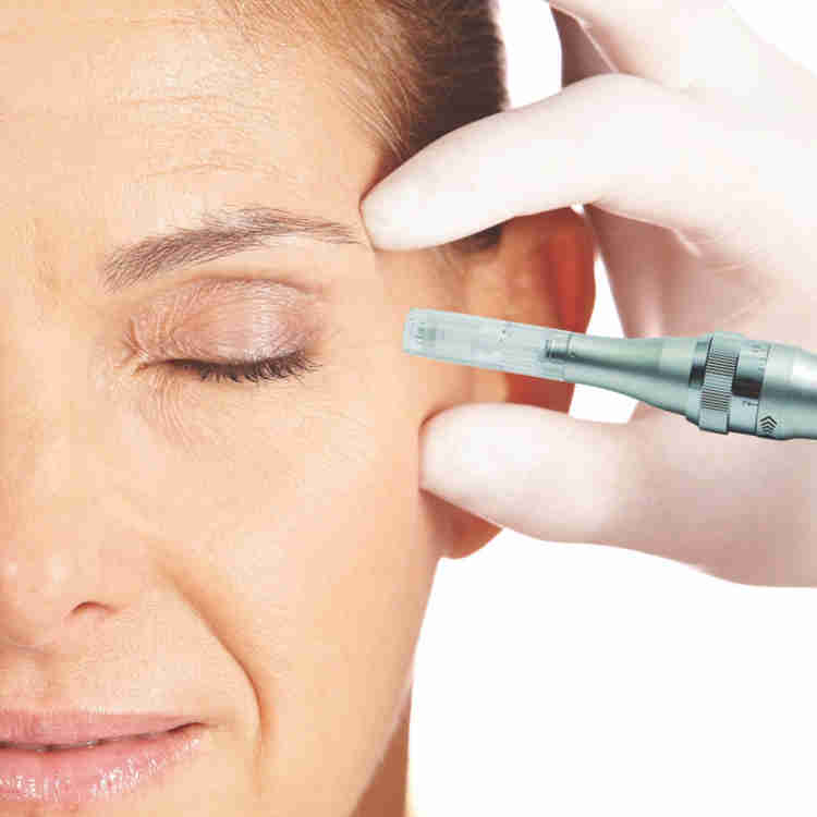 Microneedling.compressed-1024x1024