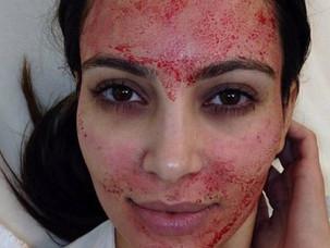 PRP Injections and Blood Facials? Ask Kim Kardashian