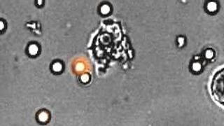 A rapidly moving neutrophil can be seen taking up several conidia