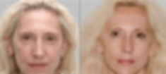 antiageing-redermalization-1024x458.png