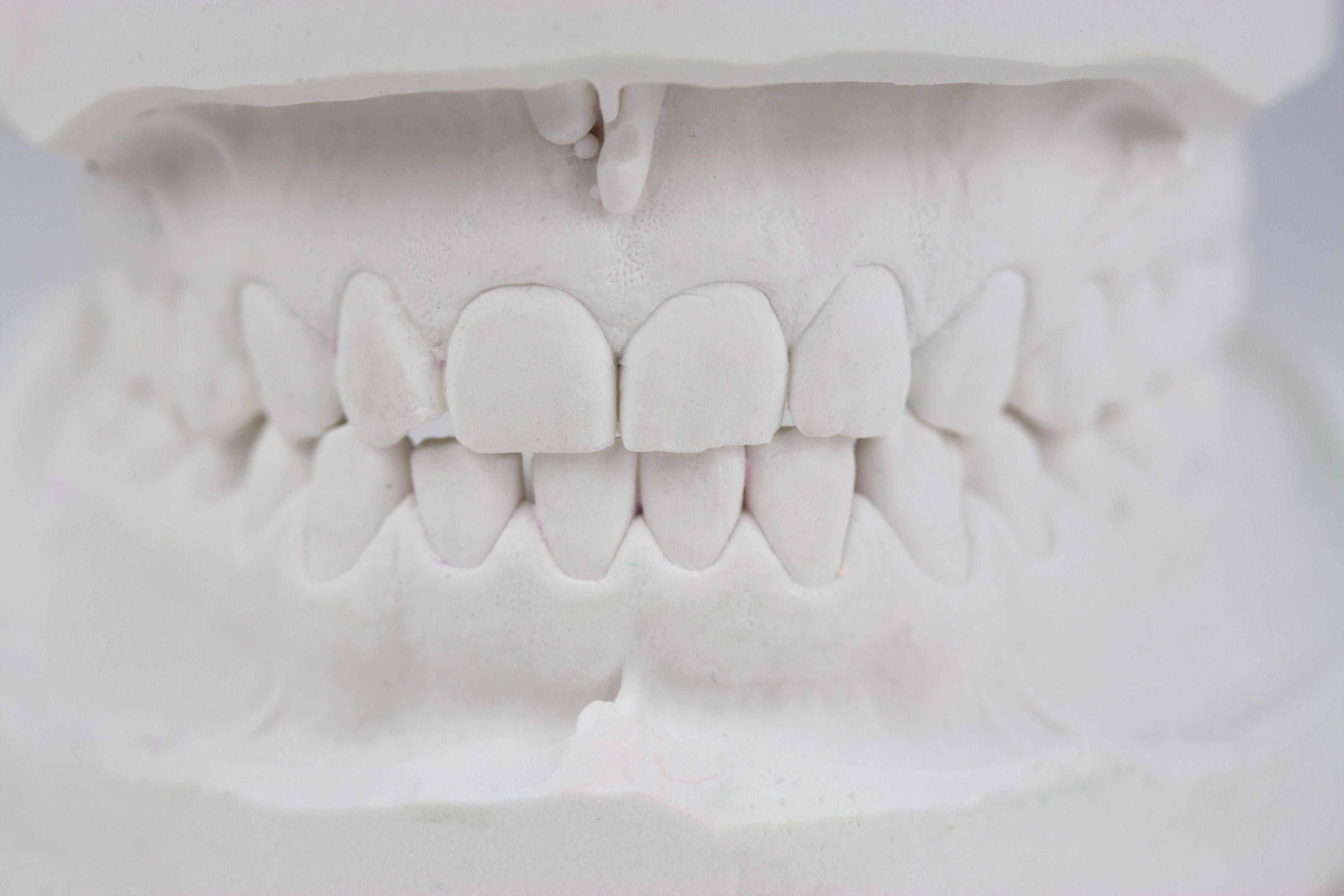 Zähneknirschen, Erstsitzung