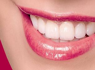 dán-răng-sứ-thẩm-mỹ-là-phương-pháp-làm-đ
