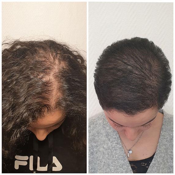 Mesotherapie-du-cheveu.jpg