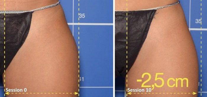 traitement-cellulite-cuisse.jpg