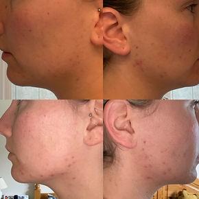 Before & after Jill Muijers.jpeg