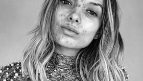 Verminder (pijnlijke)acne, eczeem en huidproblemen door het stimuleren van je ontgiftings-mechanisme