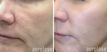 aerolase-skin-rejuvenation-before-after-kevin-pinski-4-treatments.png