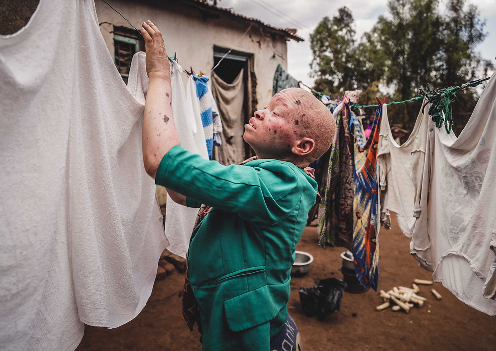 People with Albinism in Africa photo by Lior Sperandeo