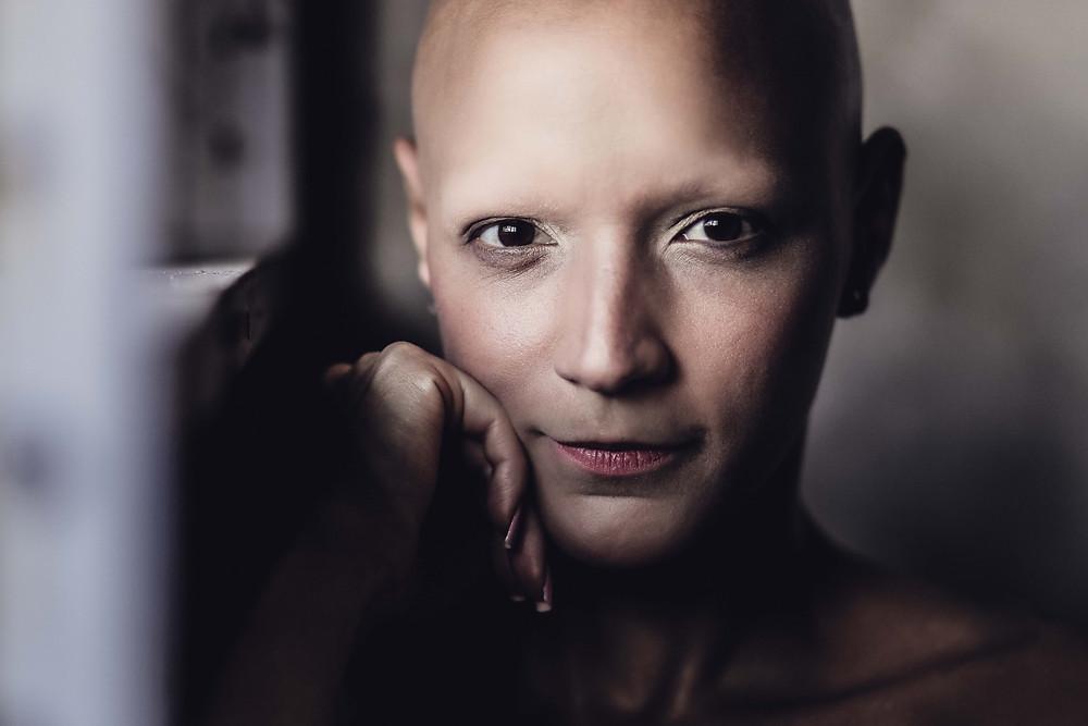 International Alopecia Day