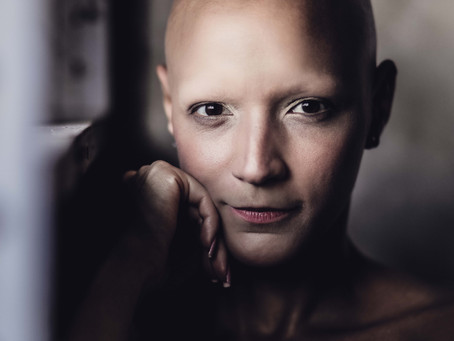 THE NEW STANDARD: International Alopecia Day