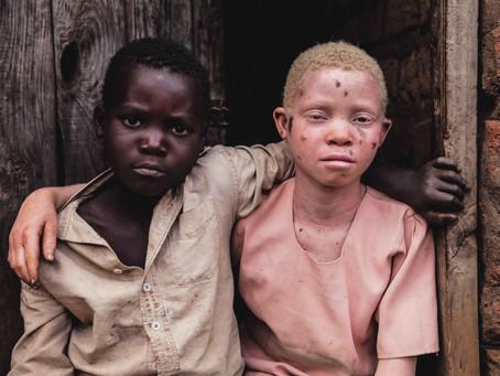 BONES | Persecution of Albinism in Malawi.