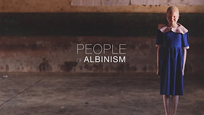 People of Albinism