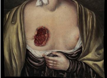 wounds brystkreft.PNG