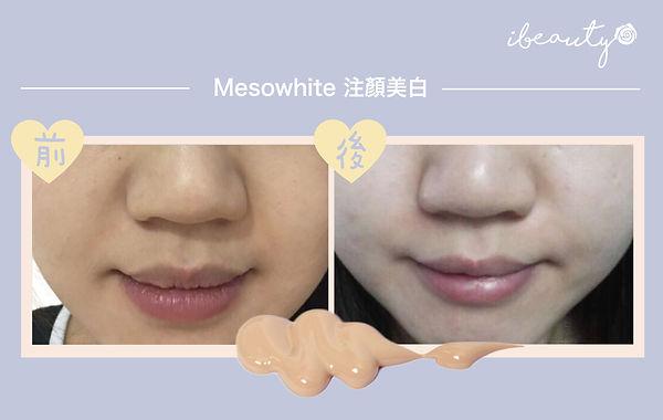 mesowhite-03.jpg