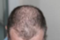 Hair loss-min.png