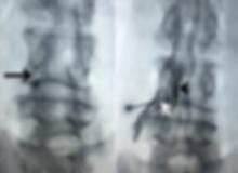 Estenose do canal vertebral