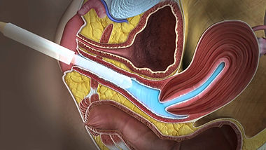 Ultrassom Endovaginal com Gel