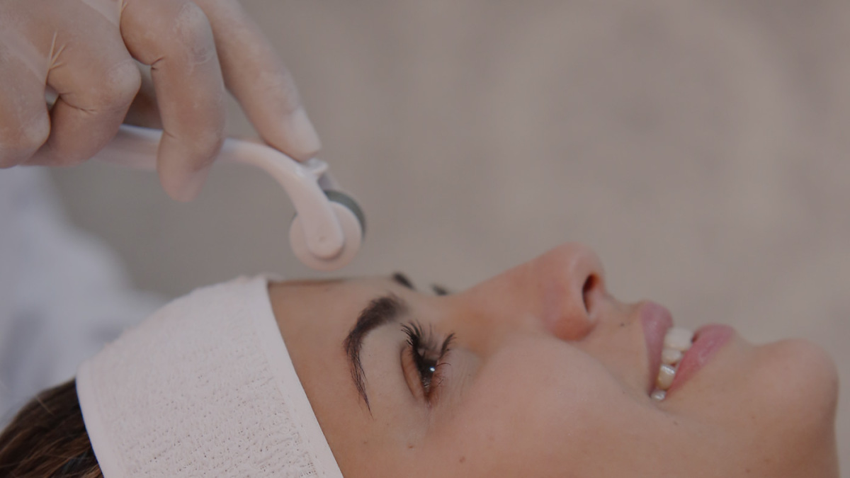 Microagulhamento na face e Botox