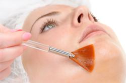 Peeling Quimico Rosto Botox