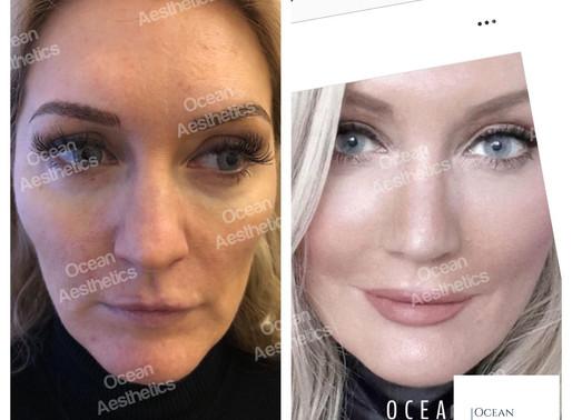 Liquid Facelift or  Facelift Surgery?