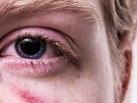 STRESS POST TRAUMATIQUE: puis-je être concerné(e)?