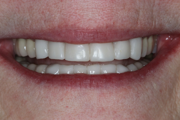 Provisional Crowns Smile
