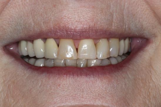 Pre Treatment Smile