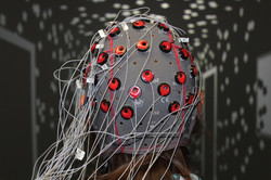 EEG electrical activity in the brain