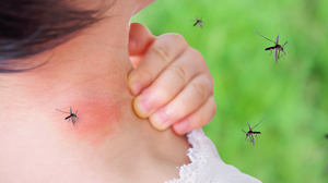 How to Keep Mosquitos Away From Your Yard?