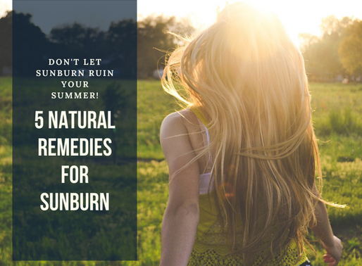 Soothe the Sunburn Naturally