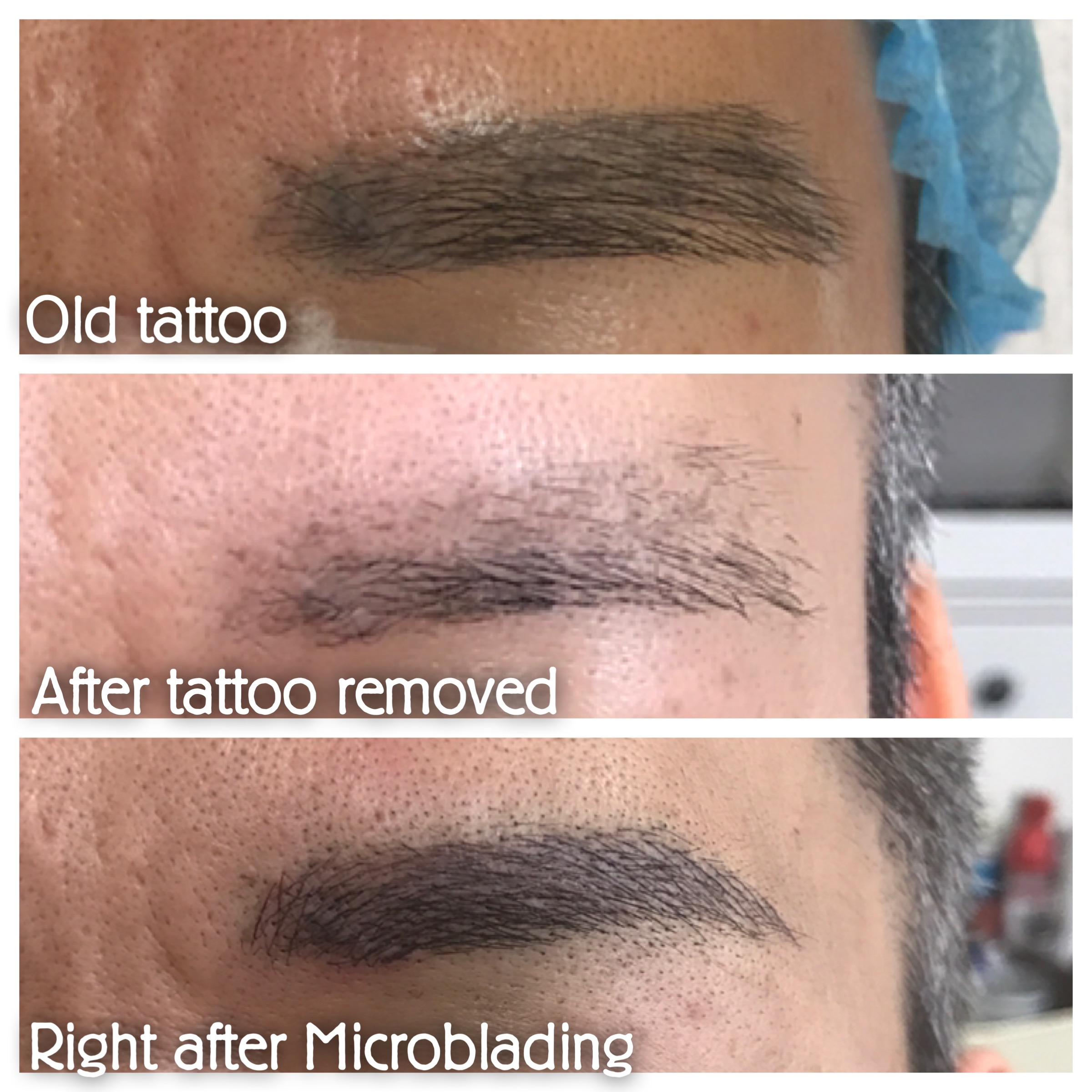 correct old tattoo +3d microblading