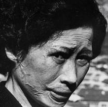 Hiroshima Atomic Bombing survivor