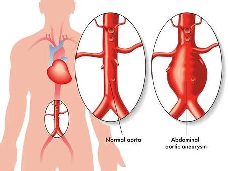 aortic-aneurysms.jpg