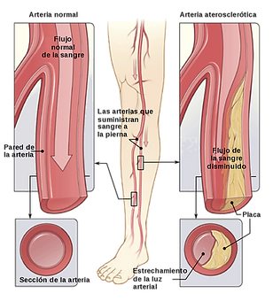 peripheral-vascular-disease.png