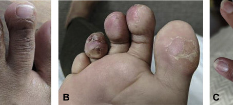 COVID toes and skin type