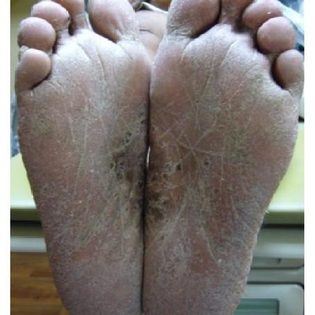 Bazex Disease: an rare but important condition