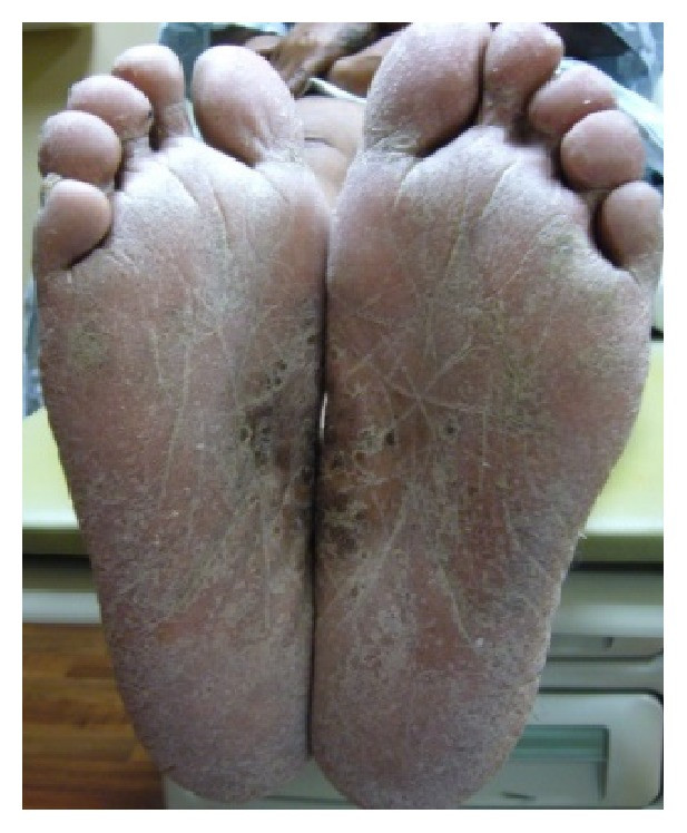 Bazex disease foot